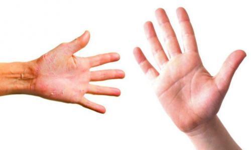 5 طرق لتجنب جفاف الجلد فى فصل الشتاء