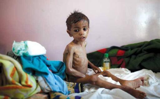 وفاة طفل كل عشر دقائق في اليمن
