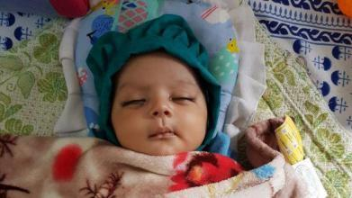 حالة نادرة.. إزالة 7 أسنان من فم رضيع حديث الولادة بالهند