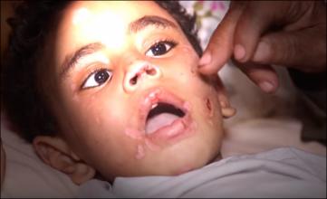 فيديو.. أم تعذب ابنها بالنار وتقطع عضوه الذكري