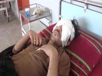 """باكستاني يقتلع عيني نجله بـ""""ملعقة"""" لسبب غير متوقع"""
