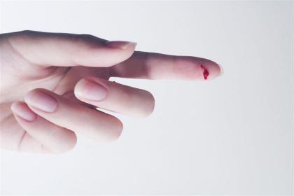 كيف تتعامل مع الجروح الوخزية الناتجة عن مسمار أو إبرة ملوثة؟