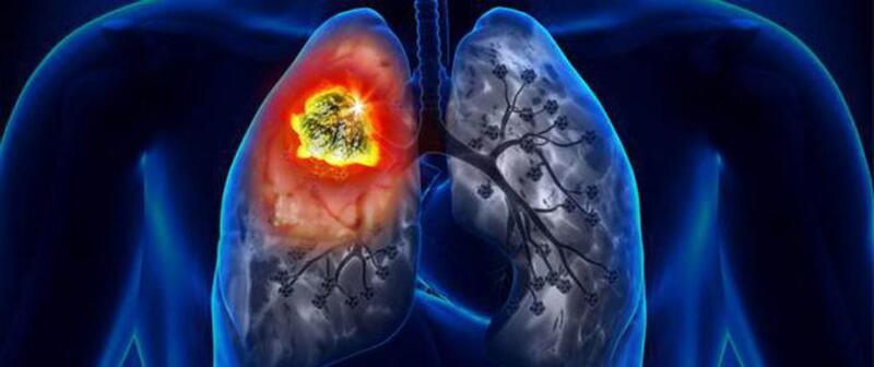 """علامات الإصابة بسرطان الرئة لدى فئة """"غير المدخنين"""""""