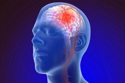 لماذا قد يصاب بعض مرضى كورونا بالسكتات الدماغية؟